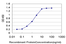 E - PGR Antibody (monoclonal) (M05) AT3287a