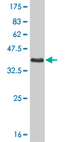 WB - PGR Antibody (monoclonal) (M07) AT3288a