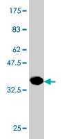 WB - PHOSPHO1 Antibody (monoclonal) (M10) AT3302a