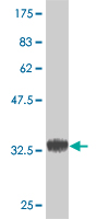 WB - POMGNT1 Antibody (monoclonal) (M07) AT3382a