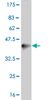 WB - PPARD Antibody (monoclonal) (M03) AT3395a