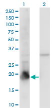 WB - PPIL1 Antibody (monoclonal) (M01) AT3403a