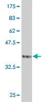 WB - PPP1R2 Antibody (monoclonal) (M01) AT3409a