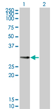 WB - PPP1R2P3 Antibody (monoclonal) (M01) AT3410a