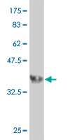 WB - PPP3R2 Antibody (monoclonal) (M07) AT3415a