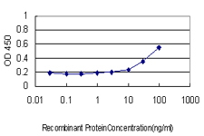 E - PRKAB2 Antibody (monoclonal) (M01) AT3429a