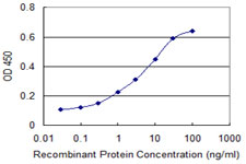 E - PRL Antibody (monoclonal) (M04) AT3438a