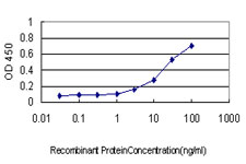 E - PSCD1 Antibody (monoclonal) (M01) AT3449a