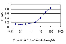E - PSMD10 Antibody (monoclonal) (M01) AT3468a