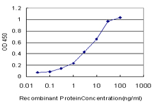 E - PSPH Antibody (monoclonal) (M06) AT3477a