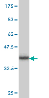 WB - PX19 Antibody (monoclonal) (M01) AT3504a