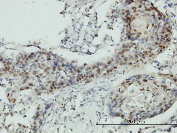 IHC - RNMT Antibody (monoclonal) (M01) AT3679a