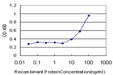 E - ROPN1 Antibody (monoclonal) (M03) AT3690a