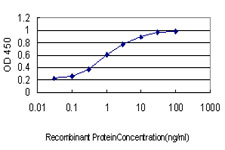 E - RPS6KB1 Antibody (monoclonal) (M01) AT3721a