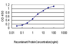 E - RRM2 Antibody (monoclonal) (M01) AT3730a