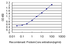 E - S100A11 Antibody (monoclonal) (M01) AT3752a