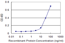E - S100A5 Antibody (monoclonal) (M03) AT3758a