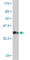 WB - S100A5 Antibody (monoclonal) (M03) AT3758a