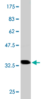 WB - S100A7 Antibody (monoclonal) (M02) AT3761a