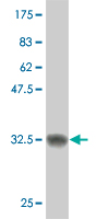 WB - SCAND2 Antibody (monoclonal) (M01) AT3779a