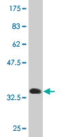 WB - SCGB1A1 Antibody (monoclonal) (M11) AT3786a