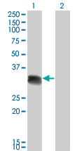 WB - SCML1 Antibody (monoclonal) (M01) AT3790a