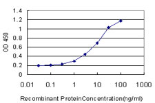 E - SCN3A Antibody (monoclonal) (M01) AT3793a
