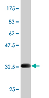 WB - SCN9A Antibody (monoclonal) (M01) AT3795a