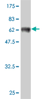 WB - SFTPD Antibody (monoclonal) (M02) AT3849a