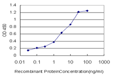 E - SIRT1 Antibody (monoclonal) (M01) AT3889a