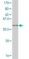 WB - SIX3 Antibody (monoclonal) (M01) AT3893a