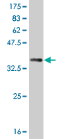 WB - SIX3 Antibody (monoclonal) (M10) AT3894a