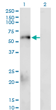 WB - SMAD1 Antibody (monoclonal) (M02) AT3936a