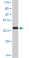 WB - SMAD5 Antibody (monoclonal) (M01) AT3944a