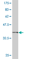 WB - SMAD6 Antibody (monoclonal) (M08) AT3947a