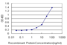 E - SMARCD2 Antibody (monoclonal) (M01) AT3952a