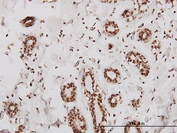 IHC - SMARCD2 Antibody (monoclonal) (M01) AT3952a