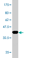 WB - SMARCD3 Antibody (monoclonal) (M01) AT3954a