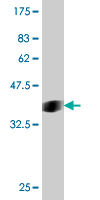 WB - SMURF1 Antibody (monoclonal) (M01) AT3966a