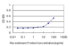 E - SOD3 Antibody (monoclonal) (M01) AT3992a