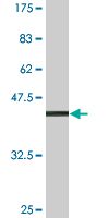 WB - SPINLW1 Antibody (monoclonal) (M02A) AT4024a