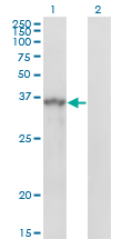 WB - SPRY1 Antibody (monoclonal) (M01) AT4031a