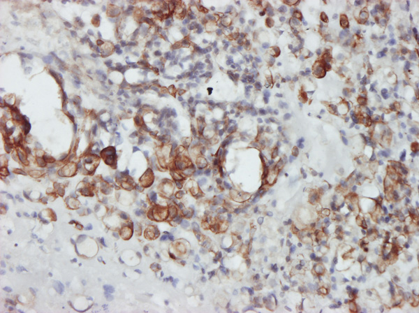 IHC - STAT4 Antibody (monoclonal) (M01) AT4063a