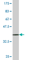 WB - STCH Antibody (monoclonal) (M02) AT4073a