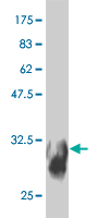 WB - SYT11 Antibody (monoclonal) (M03) AT4127a