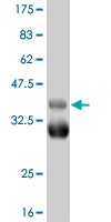 WB - TBX18 Antibody (monoclonal) (M04) AT4164a