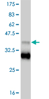 WB - TBX18 Antibody (monoclonal) (M06) AT4165a