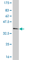 WB - TBX2 Antibody (monoclonal) (M01) AT4166a