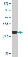 WB - TBX3 Antibody (monoclonal) (M06) AT4170a