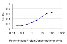 E - TIMM8A Antibody (monoclonal) (M01) AT4239a